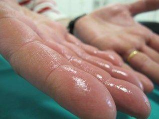 Hiperhidrosis: Llorando por los poros de la piel